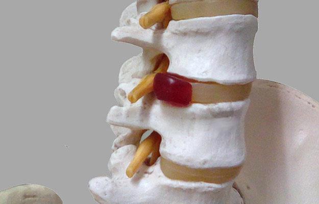 脊柱変形の逸失利益は認められにくいってホント??そもそも逸失利益って…?
